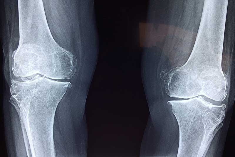 Hydrogel, Knee Repairs, Mimics Cartilage